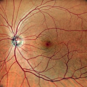 SLO 機能で撮影した眼底画像