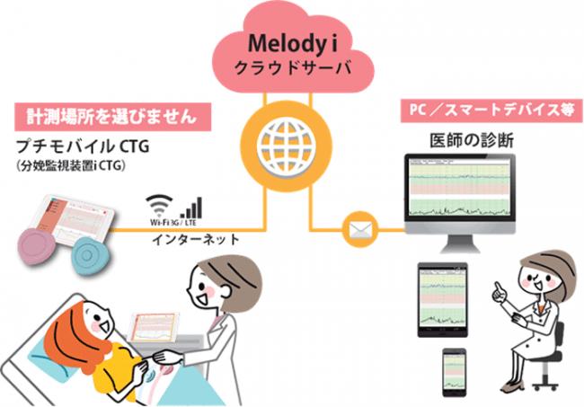 Melodyi - 周産期遠隔医療プラットフォーム