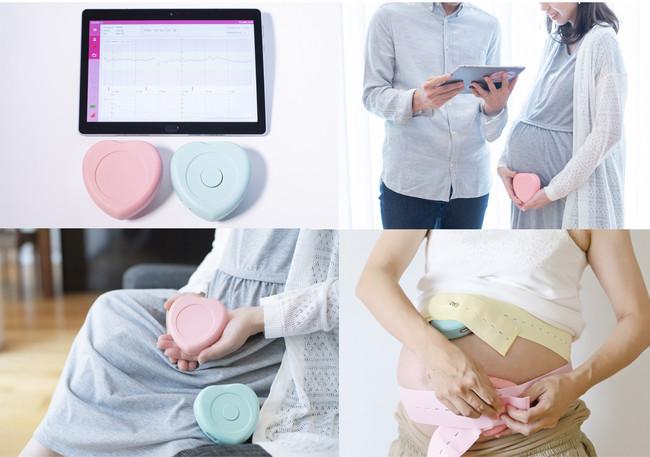 遠隔モバイル胎児モニター