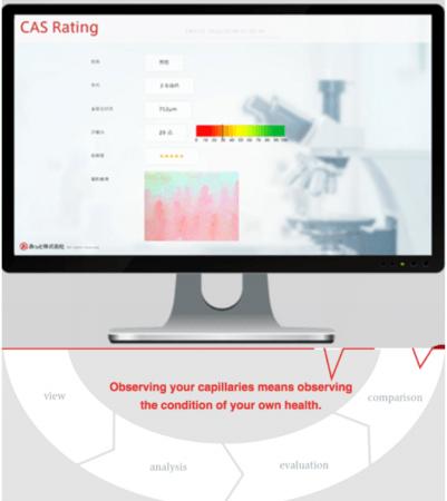 毛細血管画像評価システム「CAS-Rating」