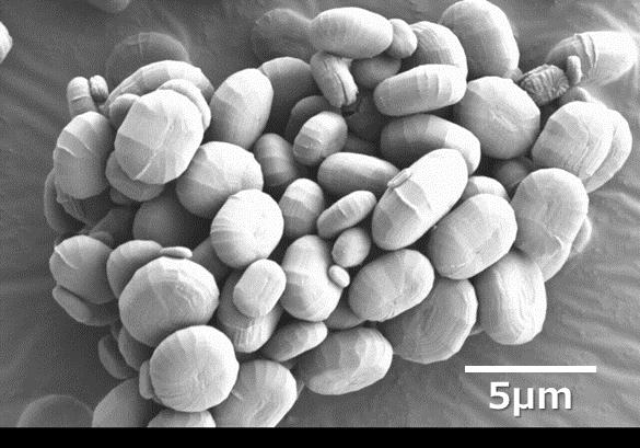 パラミロン電子顕微鏡写真