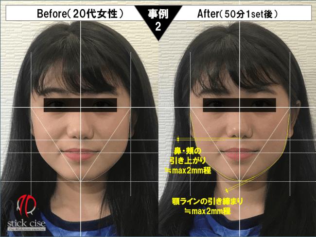 小顔スティックサイズ・事例2