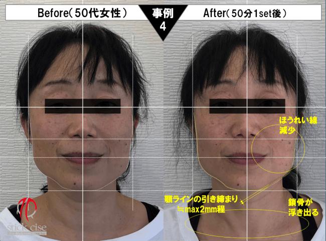 小顔スティックサイズ・事例4