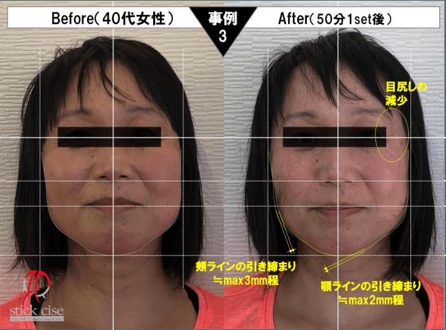小顔スティックサイズ・事例3