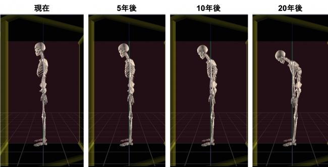 酒井慎太郎氏作成のデスクワークによって加速される うつむき姿勢から20年後を予想した図