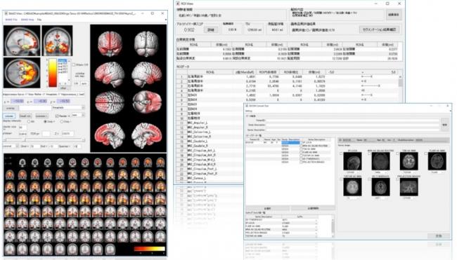 画像解析プログラムの解析結果表示例