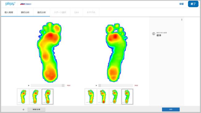 歩行時の足の動きを左右それぞれ確認することが出来ます