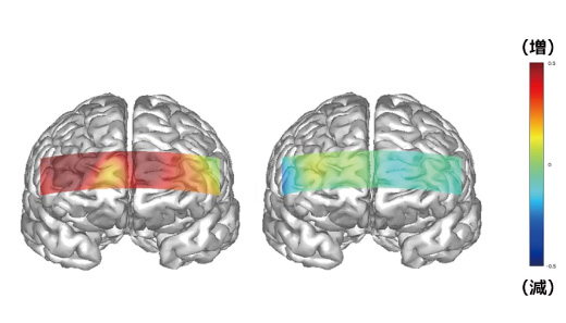 会話中の脳のヒートマップ(左)自分に合っていない眉(右)自分に合った眉