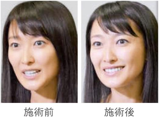 モデルB 眉施術による表情の変化