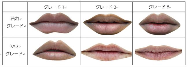 Fig1:唇の荒れ、シワのグレード