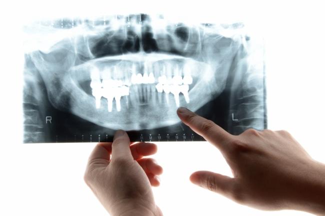 歯科医院をどんな基準で選びますか