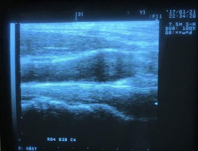 <血管径/血管壁を測定>