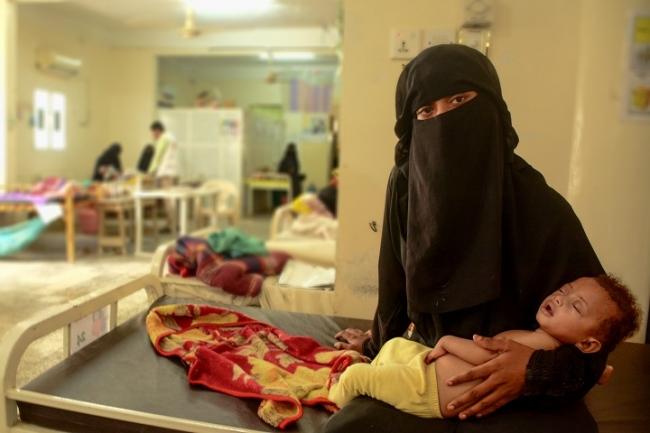 アブスでMSFが支援する病院で治療を受ける母子 (C) Mohammed Almahdi MSF