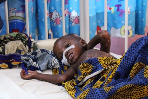 MSFの病院ではしかの治療を受けるハリマさんの子ども (C) MSF/Ghada Saafan
