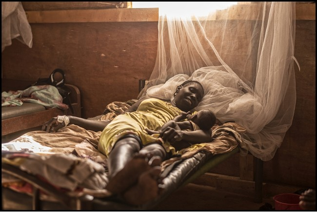 MSFの病院に入院する母子 (C) Matthias Steinbach