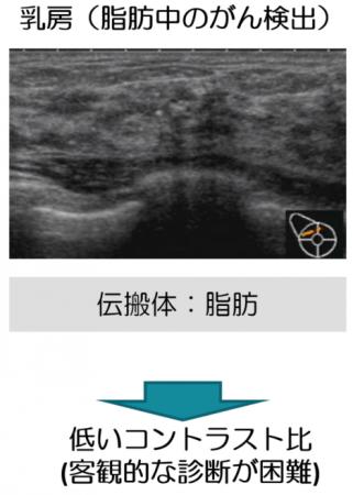 図4:乳がん検診における超音波関連技術の本質的課題.