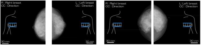 図3:高濃度乳房患者のX線マンモグラフィ画像.