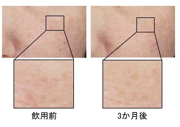 カサつき改善の代表例(40代女性・頬部)