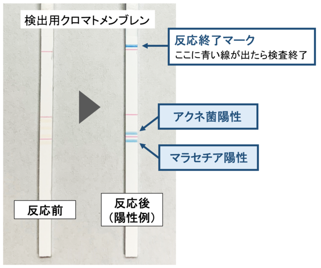 図3 アクネ菌・マラセチア陽性例