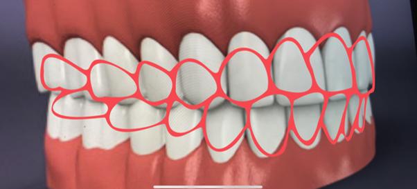 歯並び撮影画面