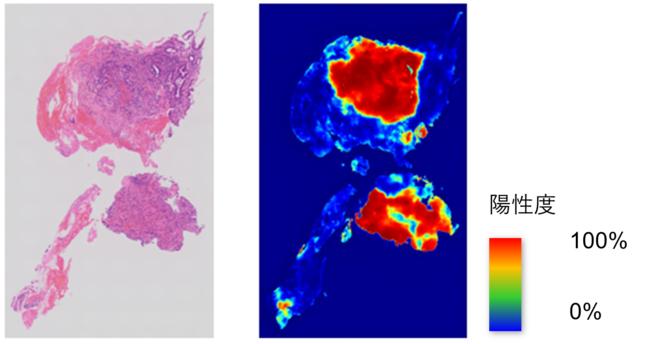 AI病理診断支援ソフトウェアの推論結果イメージ 左:元の病理ホールスライド画像 右:AI病理診断支援ソフトウェアが推論したヒートマップ 腺がんの確率が高く、陽性と思われる部位は赤く表示し、腺がんの確率が低い、陰性と思われる部位は青く表示。