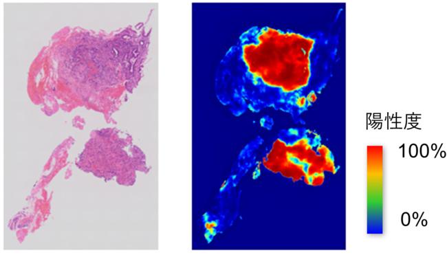 図4. AI病理診断支援ソフトウェアの 推論結果イメージ