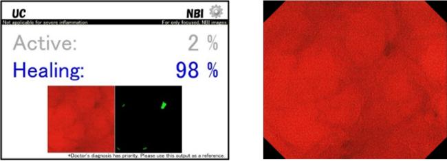 内視鏡画像診断支援ソフトウェア「EndoBRAIN-UC」 診断画像イメージ