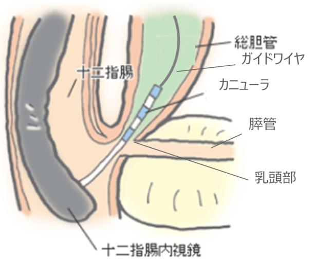 内視鏡を通じて胆管に挿入したカニューラから、ガイドワイヤを挿入する様子(イメージ)