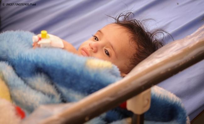 サヌアの病院で、重度の栄養不良の治療を受ける赤ちゃん。(2018年10月撮影) (C) UNICEF_UN0252405_Fuad