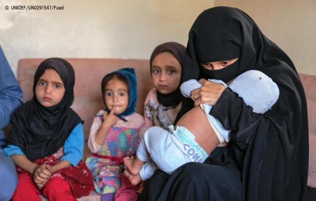 サヌアの自宅で、不安げな表情で座る子どもたち。(C) UNICEF_UN0291547_Fuad