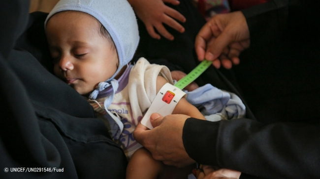 上腕計測メジャーを使い、栄養不良の検査を受ける生後7カ月のサリムちゃん。(C) UNICEF_UN0291546_Fuad