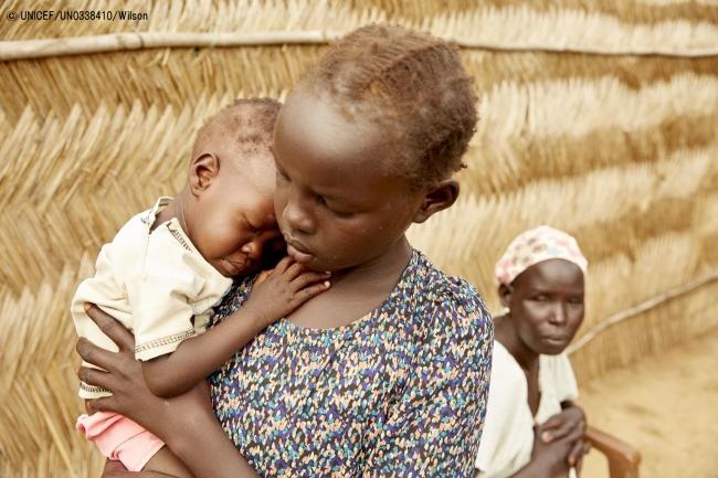 重度の急性栄養不良と診断された妹を抱く女の子。(2019年7月18日撮影) (C) UNICEF_UN0338410_Wilson
