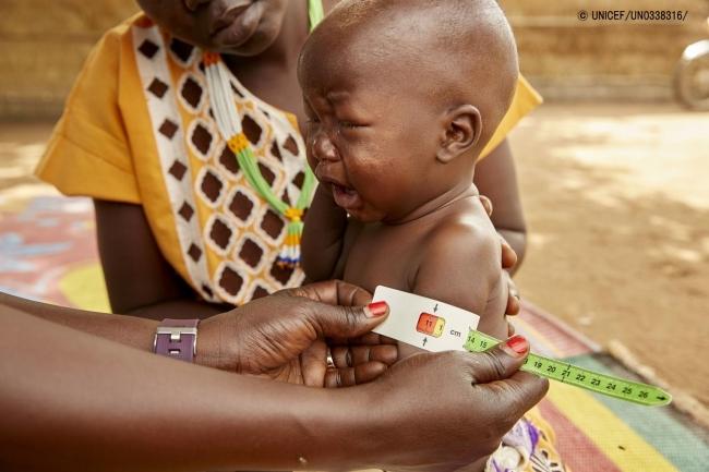 上腕計測メジャーを使って栄養不良の検査を受ける生後8カ月の赤ちゃん。(2019年7月19日撮影) (C) UNICEF_UN0338316_