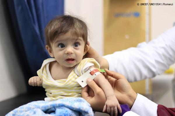 黄疸の症状でユニセフが支援するクリニックを訪れたシリアの赤ちゃん。(2020年2月13日撮影) (C) UNICEF_UNI310541_Romenzi