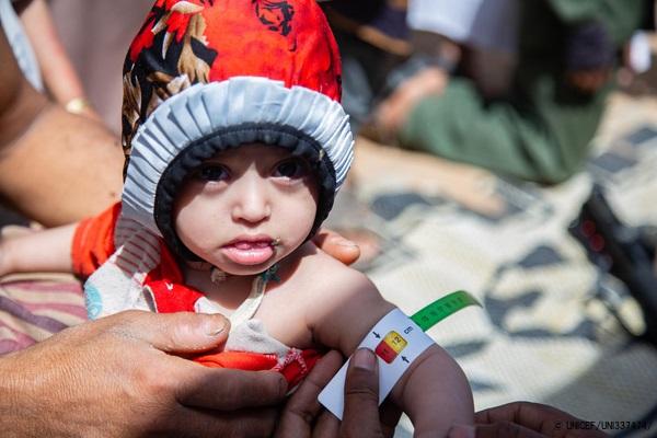 マアリブにある国内避難民キャンプで、上腕計測メジャーを使って栄養不良の検査を受ける1歳のアルワちゃん。(イエメン、2020年3月撮影) (C) UNICEF_UNI337474_