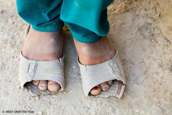壊れたサンダルを履く9歳のザキラさん。父親の収入が少なく、新しいものが買えずにいる。(アフガニスタン、2020年9月2日撮影) © UNICEF_UNI367300_Fazel