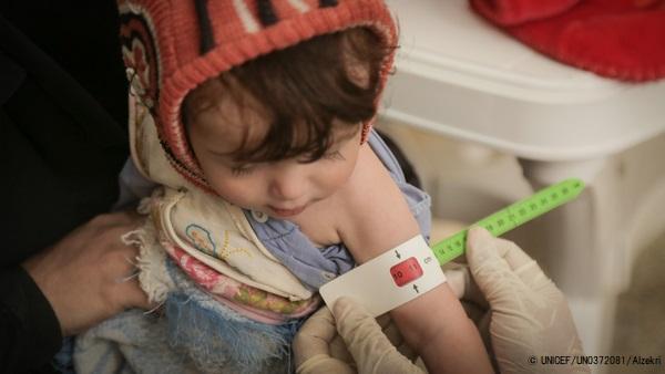 サヌアの保健センターで、上腕計測メジャーを使い栄養不良の検査を受けるアマルちゃん。(2020年6月撮影) (C) UNICEF_UN0372081_Alzekri