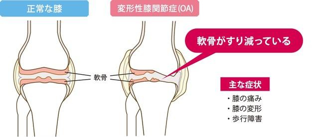 図2:変形性膝関節症(OA)の症状イメージ