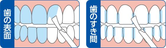 塗布例 青色部分が歯膜剤塗布箇所。歯の水分をふき取り乾いた歯に塗布。※液は透明な膜になります。