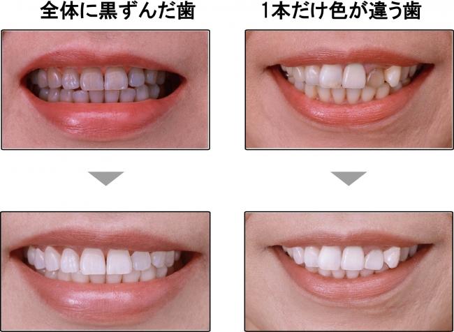 歯のマニキュア塗布Before After
