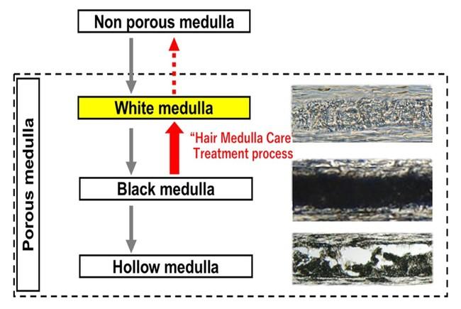 (図2)メデュラの構造変化過程