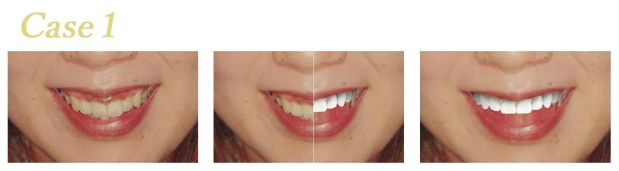 【期間限定】その場で体験できる無料シュミレーション実施中!完璧な歯並びと憧れの白さを手に入れる「ブリリアントスマイルキャンペーン」