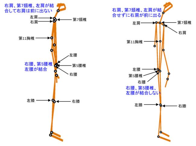 図1 I型タイプのCsc画像(左) 図2 II型タイプのCsc画像(右)