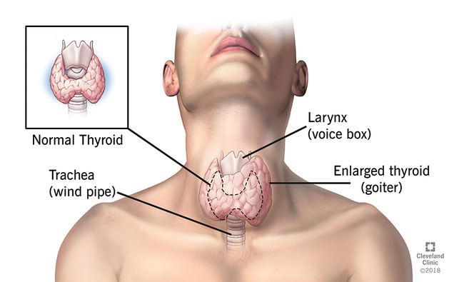 Thyroid Cancer Diagnosis