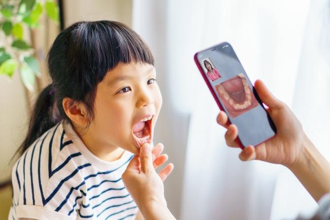カメラ機能でお口の中の状態を確認できます