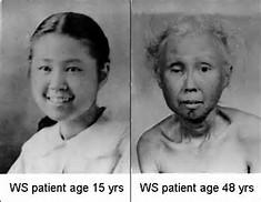 出典:ウェルナー症候群 国際レジストリ登録(ワシントン大学病院)