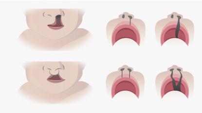 口唇裂・口蓋裂 症例イラスト