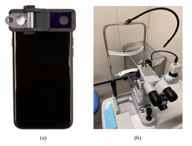 図1. (a) Smart Eye Camera (b) 従来の固定式細隙灯顕微鏡