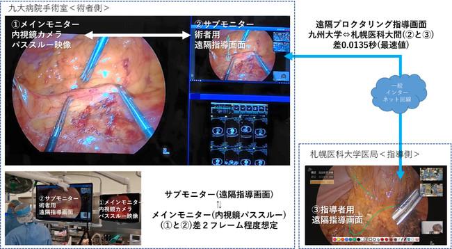 札幌・福岡間の離れた2拠点のディレイだけでなく、手術室内内視鏡映像と遠隔指導画面のディレイもほとんど気にならない程度に 調整できた