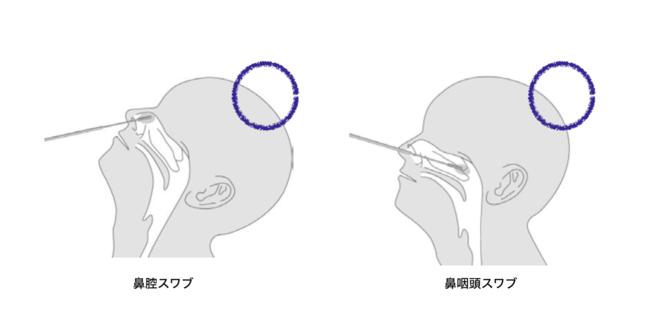 鼻腔スワブで検体はOK